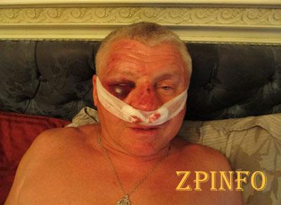 Состояние здоровья лидера Запорожского «Правого сектора» ухудшилось