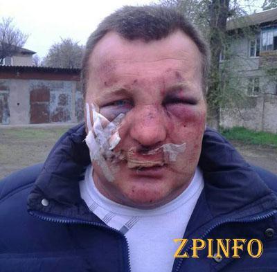 В Запорожской области главу сельсовета избивали битами